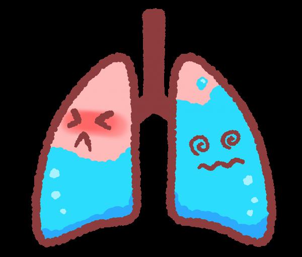 肺水腫とは