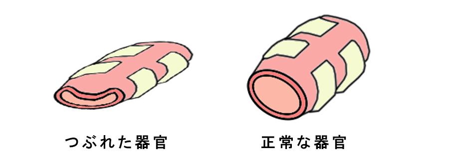 つぶれた器官の図